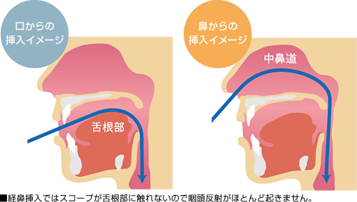 経鼻挿入のイメージ
