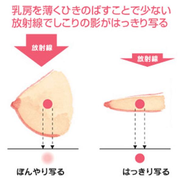 乳房を圧迫